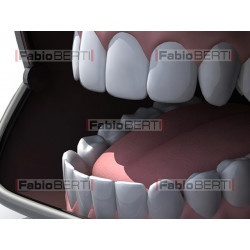 dentiera borsellino