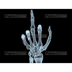 gestaccio mano X-ray