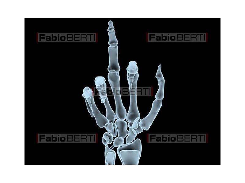 rude gesture X-Ray