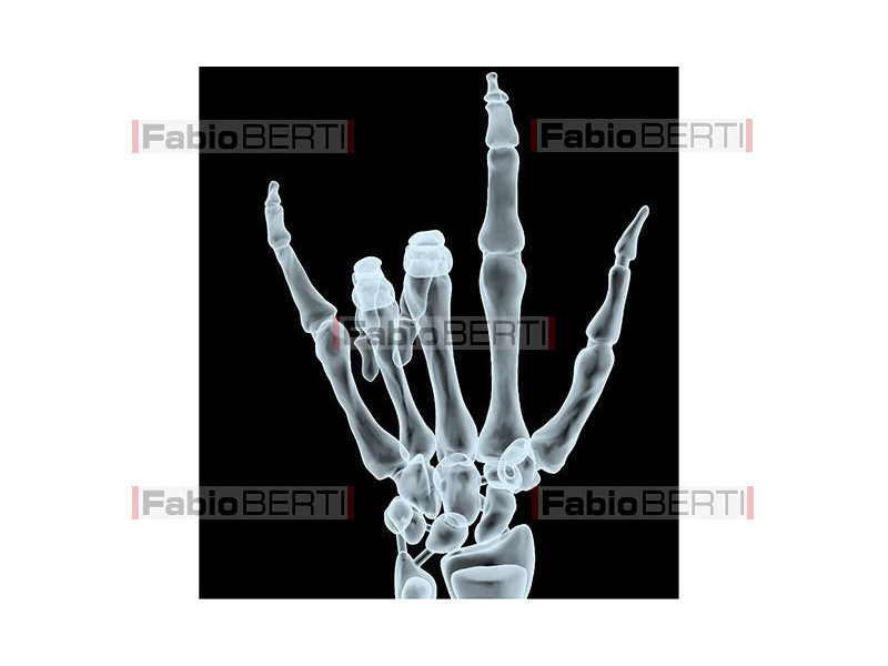 rude gesture X-Ray 2
