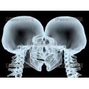 bacio X-ray