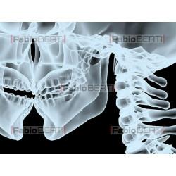 kiss X-Ray