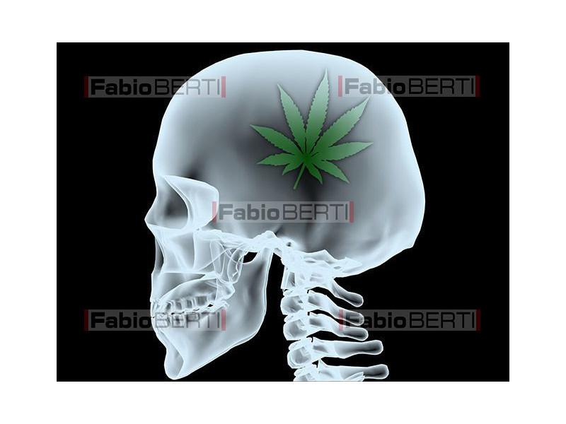x-ray head marijuana