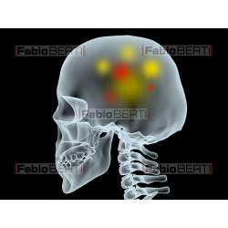 raggi x testa colori