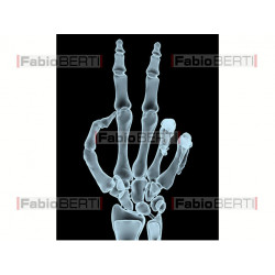victory gesture X-Ray