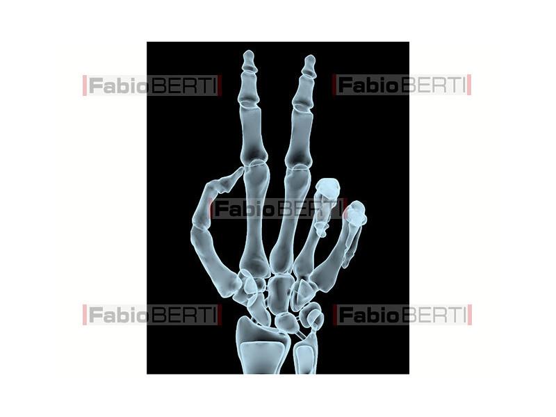 mano X-ray vittoria