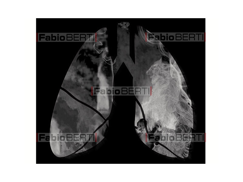 X-ray of lungs with smoke