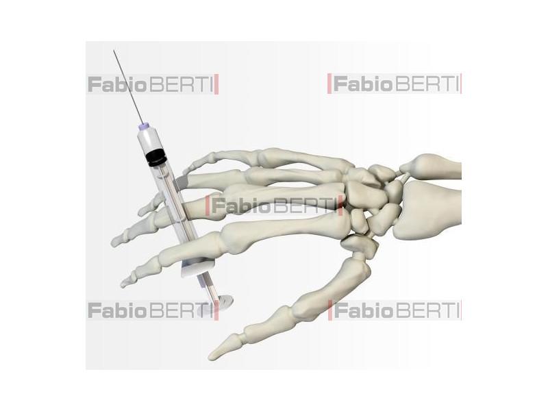 mano scheletro con siringa